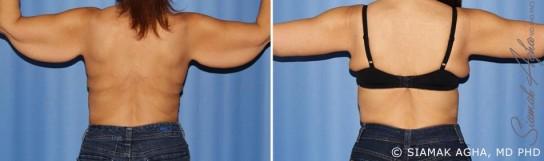 orange-county-arm-lift-patient-10-back