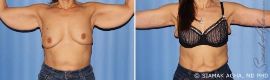 orange-county-arm-lift-patient-10-front