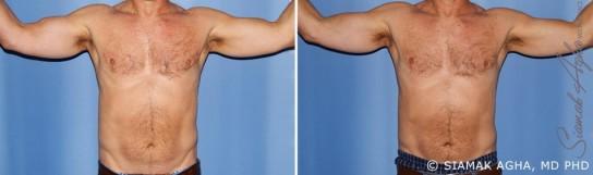 orange-county-arm-lift-patient-11-front