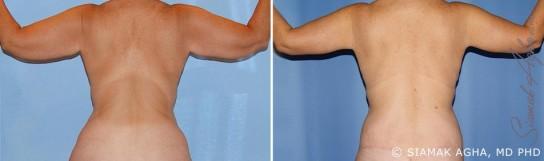 orange-county-arm-lift-patient-12-back