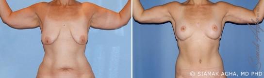 orange-county-arm-lift-patient-12-front