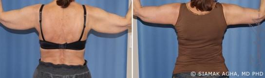 orange-county-arm-lift-patient-2-back
