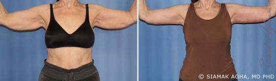 orange-county-arm-lift-patient-2-front