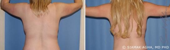 orange-county-arm-lift-patient-3-back