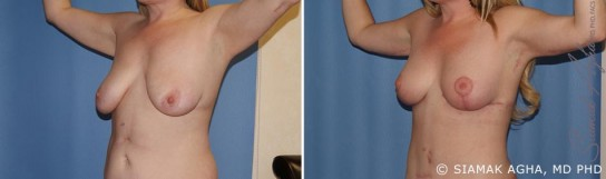 orange-county-arm-lift-patient-3-front-left
