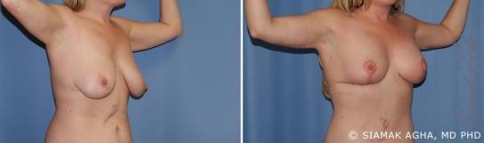 orange-county-arm-lift-patient-3-front-right