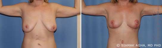 orange-county-arm-lift-patient-3-front
