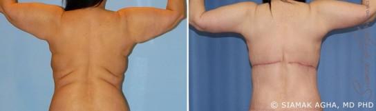 orange-county-arm-lift-patient-8-back