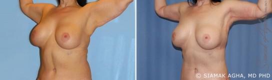 orange-county-arm-lift-patient-8-front-left
