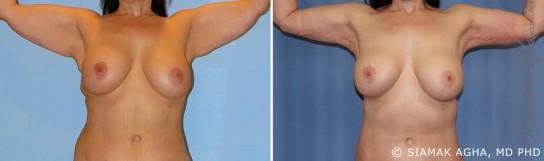 orange-county-arm-lift-patient-8-front