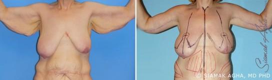 orange-county-arm-lift-patient-9-front