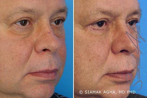 orange-county-blepharoplasty-patient-1-front