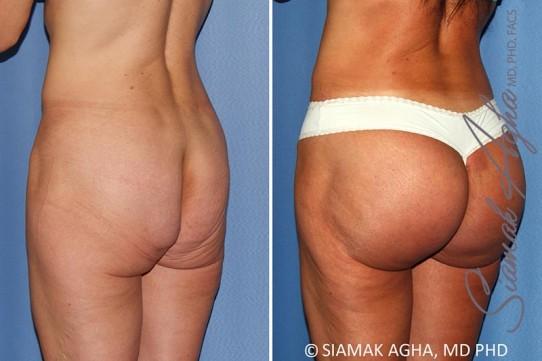 orange-county-brazilian-butt-lift-patient-29-back-left