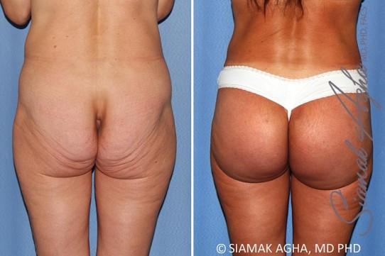 orange-county-brazilian-butt-lift-patient-29-back