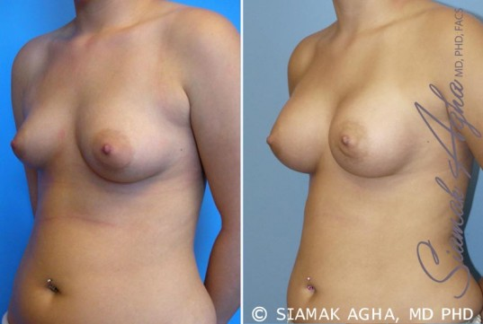 orange-county-breast-asymmetry-patient-2-front-left