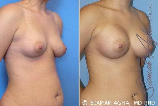 orange-county-breast-asymmetry-patient-2-front-right