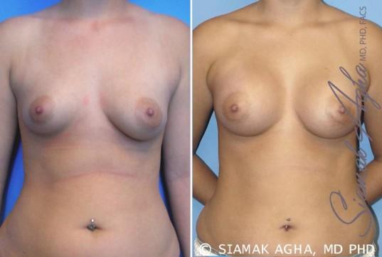 orange-county-breast-asymmetry-patient-2-front
