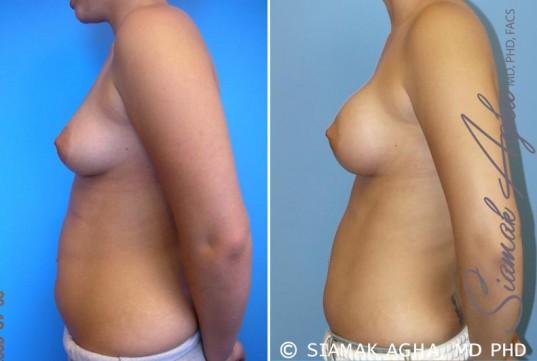 orange-county-breast-asymmetry-patient-2-left