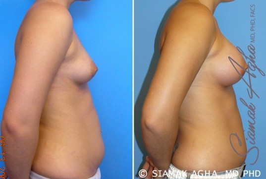 orange-county-breast-asymmetry-patient-2-right