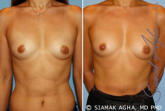 orange-county-breast-asymmetry-patient-3-front