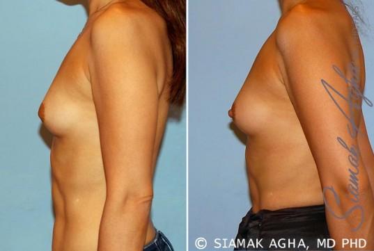orange-county-breast-asymmetry-patient-3-left