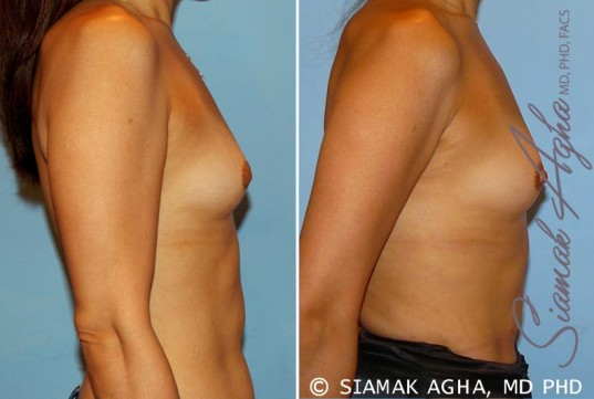 orange-county-breast-asymmetry-patient-3-right