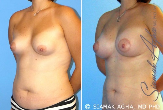 orange-county-breast-asymmetry-patient-4-front-left