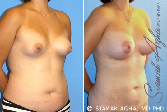 orange-county-breast-asymmetry-patient-4-front-right