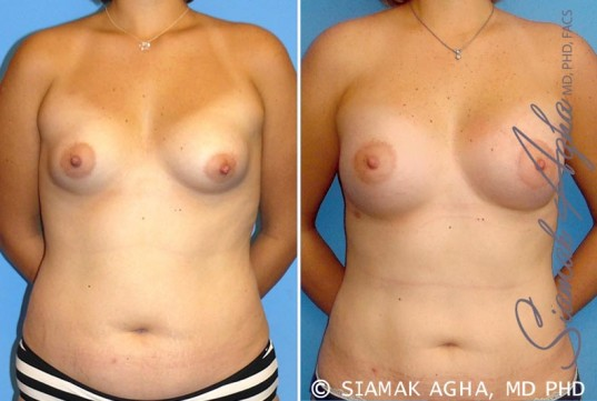 orange-county-breast-asymmetry-patient-4-front