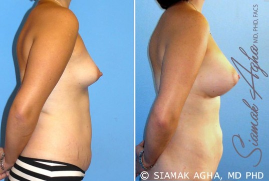 orange-county-breast-asymmetry-patient-4-right