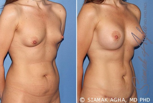 orange-county-breast-asymmetry-patient-5-front-right