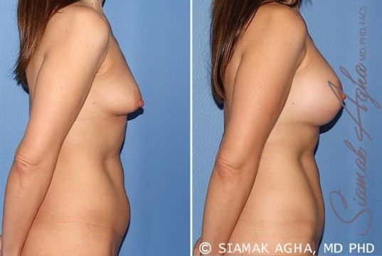 orange-county-breast-asymmetry-patient-5-right