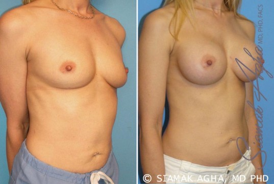 orange-county-breast-augmentation-patient-10-front-right