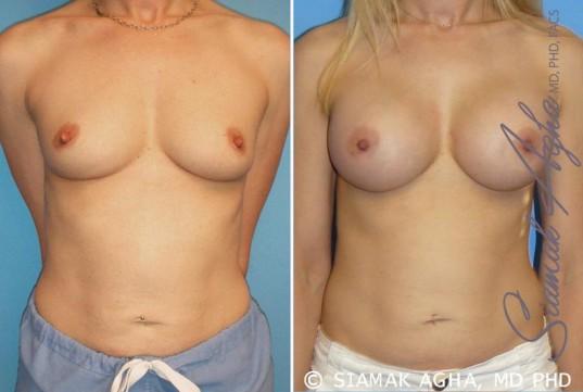 orange-county-breast-augmentation-patient-10-front