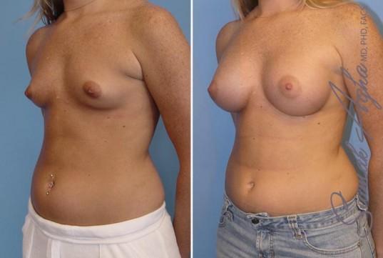 orange-county-breast-augmentation-patient-12-front-left
