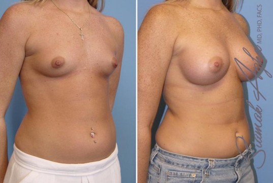 orange-county-breast-augmentation-patient-12-front-right