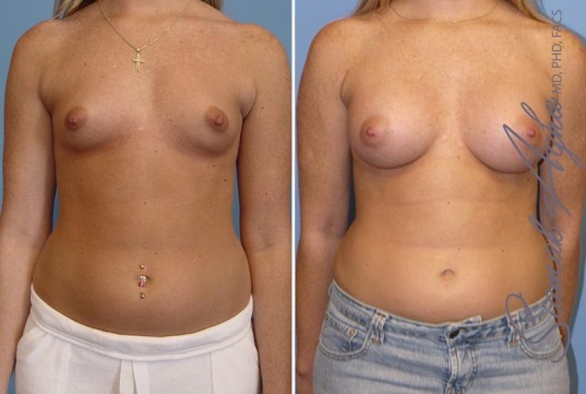 orange-county-breast-augmentation-patient-12-front