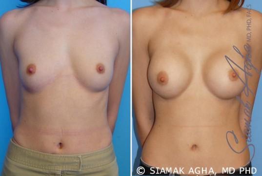 orange-county-breast-augmentation-patient-13-front