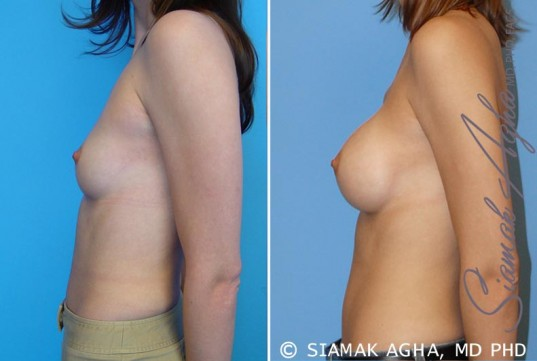 orange-county-breast-augmentation-patient-13-left