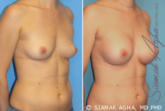 orange-county-breast-augmentation-patient-15-front-right