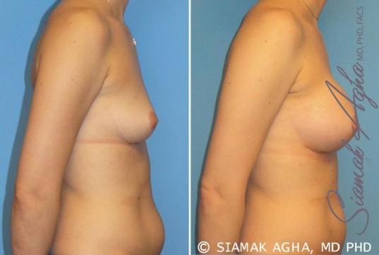 orange-county-breast-augmentation-patient-15-right