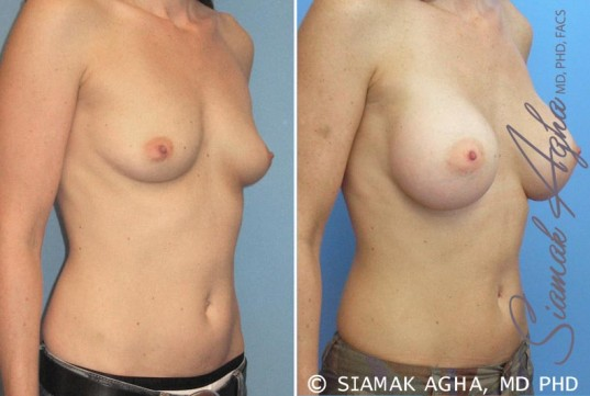orange-county-breast-augmentation-patient-16-front-right