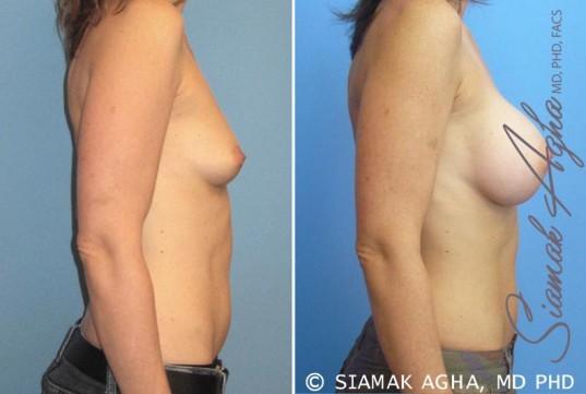 orange-county-breast-augmentation-patient-16-right