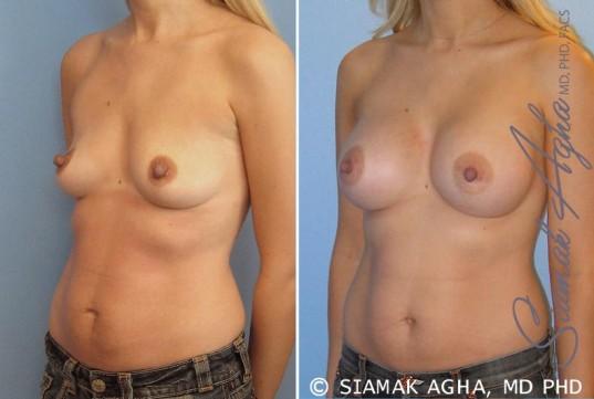 orange-county-breast-augmentation-patient-17-front-left