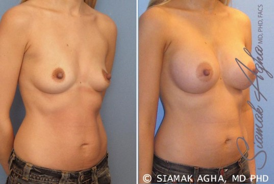 orange-county-breast-augmentation-patient-17-front-right