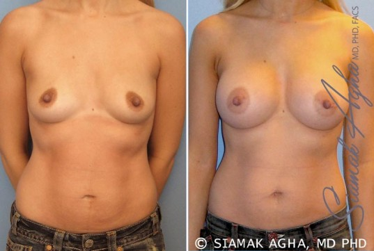 orange-county-breast-augmentation-patient-17-front