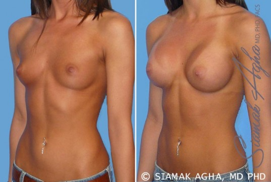 orange-county-breast-augmentation-patient-19-front-left
