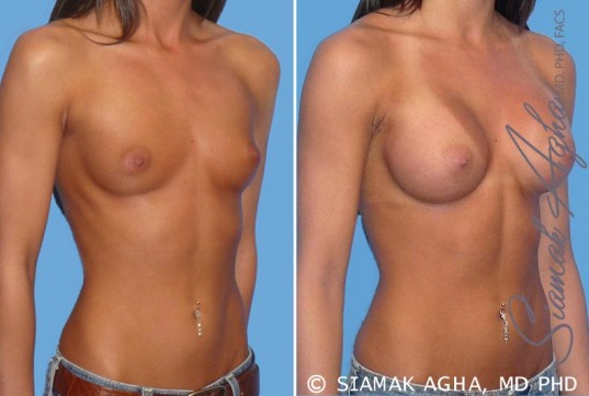 orange-county-breast-augmentation-patient-19-front-right