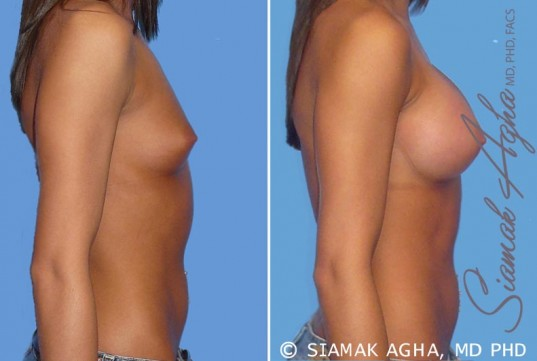 orange-county-breast-augmentation-patient-19-left
