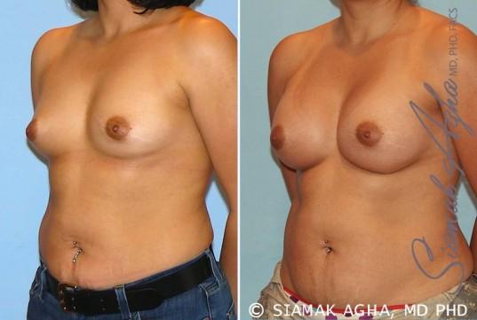 orange-county-breast-augmentation-patient-20-front-left